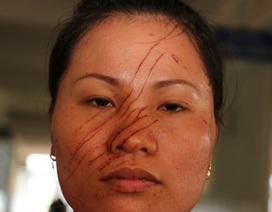2 mẹ con bị hàng xóm rạch mặt, đánh nhập viện