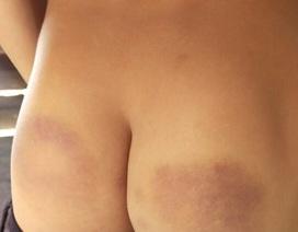 Cô giáo chủ nhiệm đánh bầm mông 12 học sinh do không hoàn thành bài tập