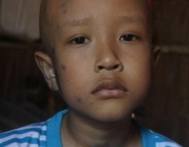 Xót thương cậu bé lớp 2 cầm cự từng ngày với bệnh ung thư quái ác