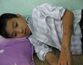 Nỗi buồn nặng trĩu  tâm can cậu bé 13 tuổi trên giường bệnh
