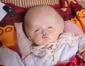 Hơn 124 triệu đồng đến với bé 6 tháng tuổi đầu to dị thường