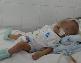 Bé trai 9 tháng tuổi có trái tim nằm bên phải