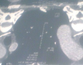 Xương gà xuyên thủng thực quản, bệnh nhân suýt tử vong