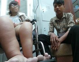 Cô gái trẻ mang đôi chân khổng lồ