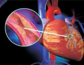 Rượu và béo phì - Thủ phạm gây đột tử do tim