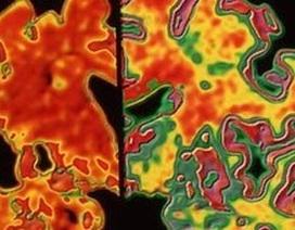 Phát hiện sớm Alzheimer nhờ các dấu hiệu di truyền