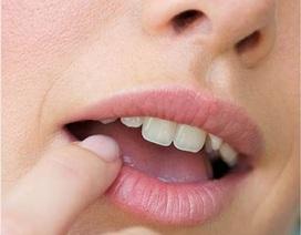 Dấu hiệu sức khỏe qua đôi môi