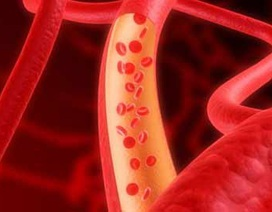 Ca cấy ghép tĩnh mạch nhân tạo đầu tiên trên thế giới