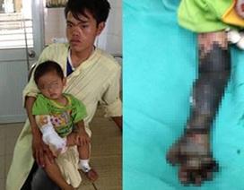 Cháu bé bị hoại tử cánh tay do cha mẹ đắp tro lên vết bỏng