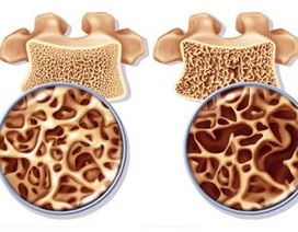 Khám phá giải pháp phòng ngừa loãng xương đơn giản