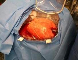 Lá phổi chờ ghép được bảo tồn lâu nhất từ trước tới nay