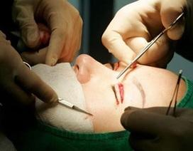 Báo Pháp: Phẫu thuật thẩm mỹ ở Việt Nam nguy hiểm