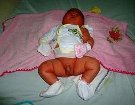 Bình Định: Bé sơ sinh nặng gần 6kg