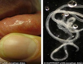Ấu trùng giun di chuyển dưới da do nhiễm từ động vật