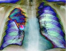 Tỉ lệ phụ nữ mắc ung thư phổi tăng 73%