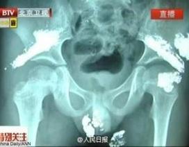 """Trung Quốc: Thủy ngân """"chảy ra"""" từ người bé 5 tuổi"""