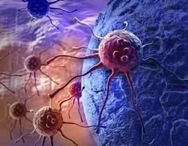 Xét nghiệm ung thư đại tràng tại nhà có độ nhạy cao