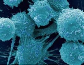 Giảm 60% nguy cơ ung thư tuyến tiền liệt khi cắt bao quy đầu