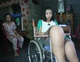 Tâm hồn đẹp lung linh của cô bé 18 tuổi có đôi chân khổng lồ