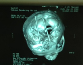 Hôn mê vì đôi đũa đâm xuyên sọ não