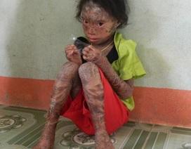 """Nhói lòng nhìn bé gái 10 tuổi, mỗi tháng """"thay da"""" một lần"""