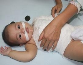 Bố mẹ sơ suất, bé 7 tháng tuổi gánh chịu tai nạn bỏng nước sôi nặng nề
