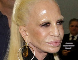 Sốc với gương mặt biến dạng của nhà thiết kế Donatella Versace