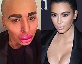 Một người đàn ông phẫu thuật thẩm mỹ để giống cô Kim