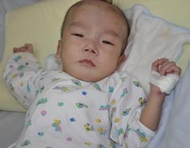 Cậu bé Long bị viêm phổi nặng sau ca mổ tim