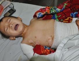 Thương bé 2 tuổi đau đớn vì bỏng nước sôi