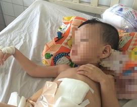 Bé 3 tuổi bị người tình của mẹ đạp vỡ đại tràng