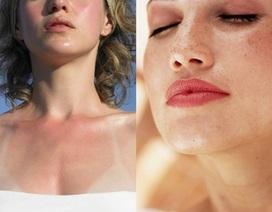 5 giải pháp cho làn da mùa nắng 'thiêu đốt'