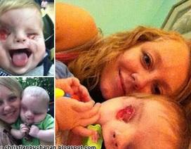 Video cảm động của một bà mẹ có con không mắt