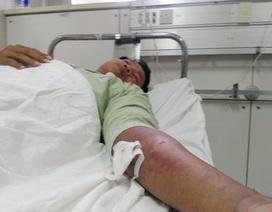Gần chục người dân Huế bị rắn lục đuôi đỏ cắn nhập viện