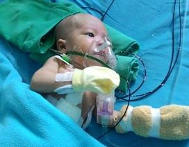 Phối hợp cứu sống trẻ sơ sinh bị đa chứng bệnh ở tim