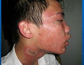 """Bệnh viêm da tiếp xúc côn trùng """"vào mùa"""""""