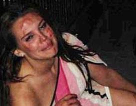 Cựu Hoa hậu Anh bị đánh bầm dập