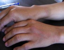 Một phụ nữ bị cán bộ quy tắc đô thị đánh bầm tay