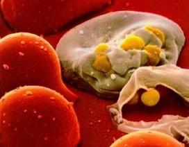 Virus HIV có thể trốn trong tủy xương