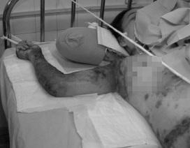 Một bệnh nhân bị tuột da nghiêm trọng