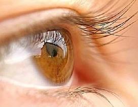 Hiện tượng vôi hóa mắt là gì?