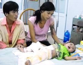 Bỏng nặng, bé 6 tháng tuổi nhiều lần mấp mẻ cửa tử