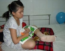 Bé gái bị nắp pô xe gắn máy cắt đứt xương bàn chân