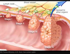 Các giai đoạn của ung thư