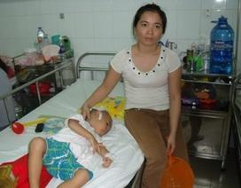 Cháu bé bị cha chém đã được ghép xương sọ