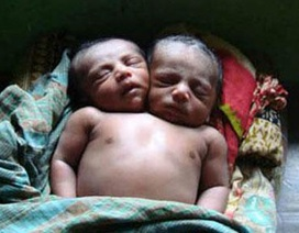 Trẻ sơ sinh 2 đầu qua đời ở Indonesia