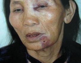 Bác sĩ hành hung cụ bà 70 tuổi và một sản phụ