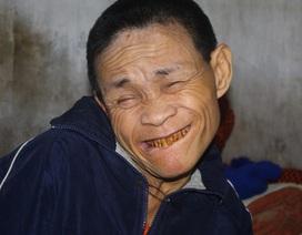 """Thương người đàn ông với nụ cười... """"khó coi"""""""