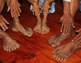Gia tộc có 14 người chân tay 6 ngón