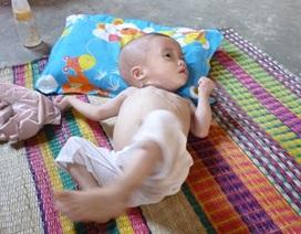 Tội tình bé gái 2 tuổi bệnh tật bị cha mẹ bỏ rơi cho bà nội già yếu chăm sóc